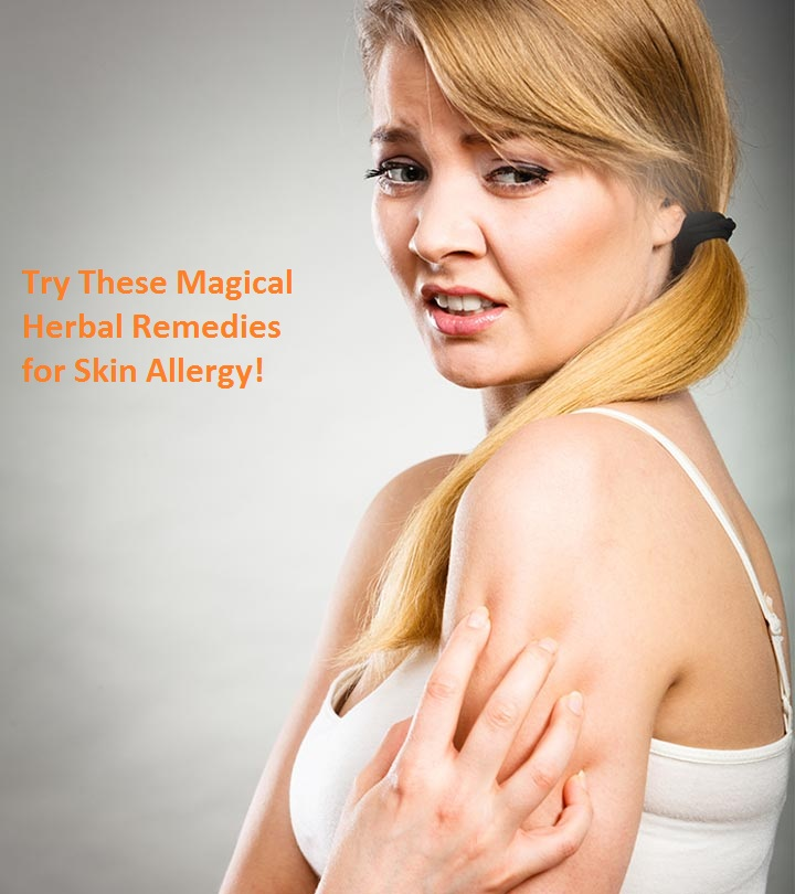Try These Magical Herbal Remedies for Skin Allergy!