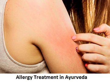 Allergy Treatment in Ayurveda