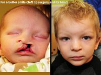 For a better smile: Cleft lip surgery and its basics