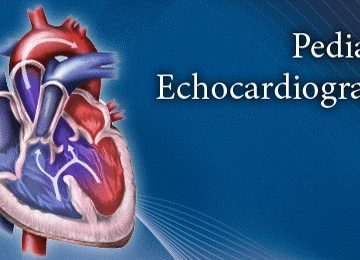 Pediatric Echocardiography in Infants and Children