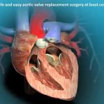 Safe and easy aortic valve replacement surgery at least cost