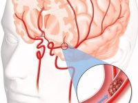 What is cerebral thrombosis