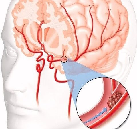 Blood clot brain surgery in India – an urgent procedure to save life