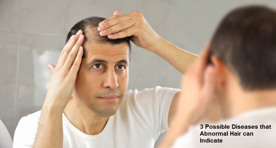 3 Possible Diseases that Abnormal Hair can Indicate