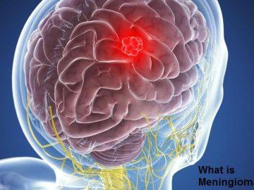 What is Meningioma