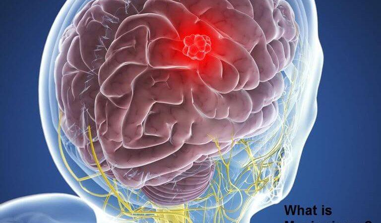 What is Meningioma?