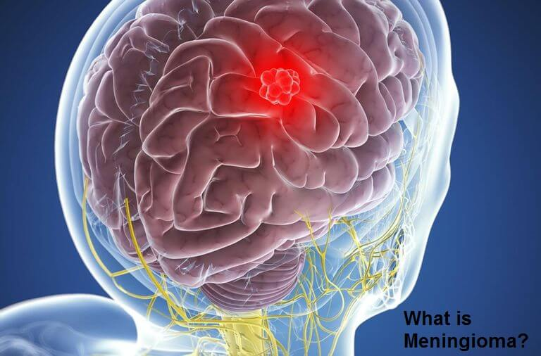 What is Meningioma