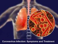 Coronavirus Infection Symptoms and Treatment